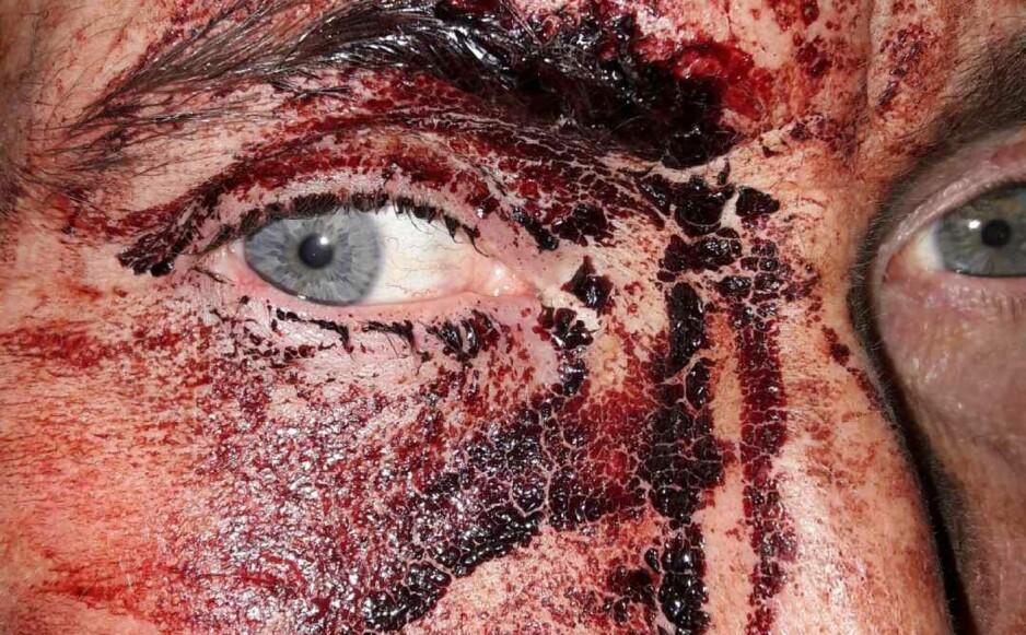 BLODIG: Polititjenestemannen ble angrepet med en spikerplanke og blødde kraftig under oppdraget tirsdag kveld. Likevel fortsatte han oppdraget som førte til fire pågripelser. Foto: Politiet