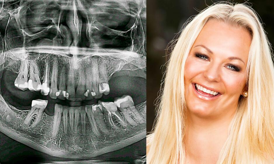 ALVORLIG: Slik så det ut før Henriette fikk satt inn nye tenner. Hun måtte trekke tenner oppe på venstre side og nede på høyre side. Foto: Tor Lindseth og privat