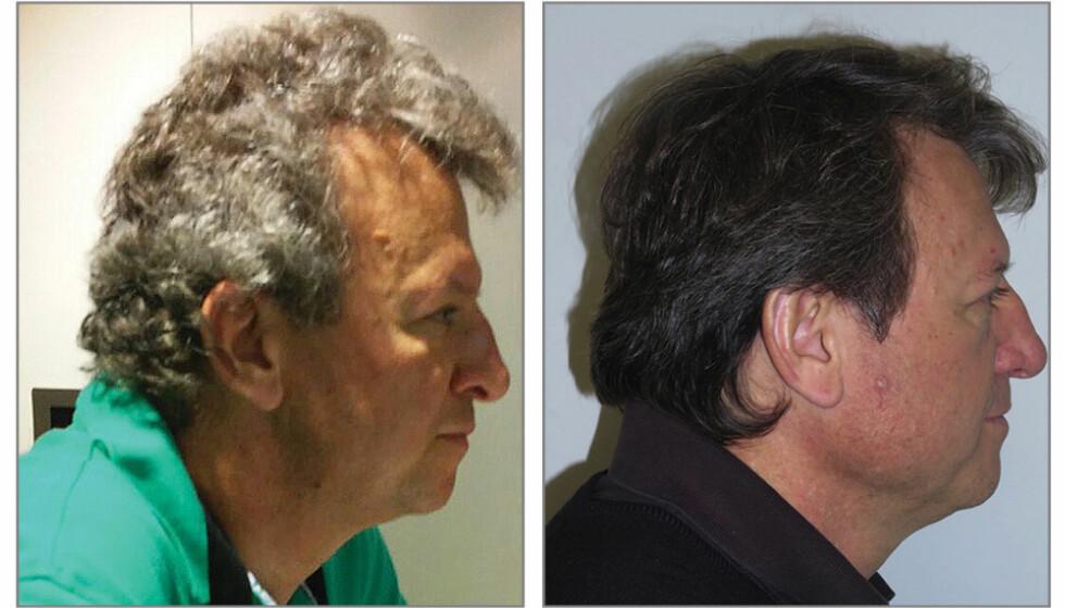 <strong>SLIK BLE HÅRET:</strong> Bildet til venstre viser en av pasientene i studien før behandlingen. Bildet til høyre ble tatt et par måneder etter påbegynt behandling. Foto: JAMA / AP / NTB Scanpix