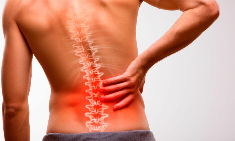 STIV OG VOND RYGG: Alle har vondt i ryggen nå og da. Heldigvis er det mye du kan gjøre for å løsne opp stivheten. Foto: NTB Scanpix