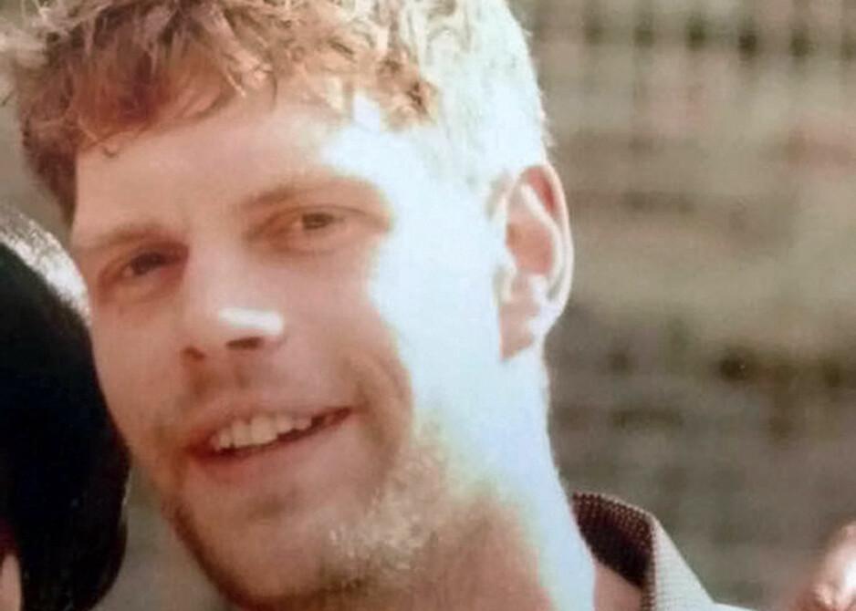 STORE SKADER: Brannmerkene Mark Van Dongen (29) satt igjen med etter syreangrepet dekket 25 prosent av kroppen hans. Han ble lam fra nakken og ned, måtte amputere venstre ben og ble blind på det ene øyet. Foto: REX / Shutterstock / NTB Scanpix
