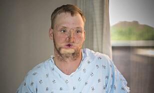 FØR TRANSPLANTASJONEN: Andy Sandness, før operasjonen i 2016. FOTO: Eric M. Sheahan/Mayo Clinic via AP.