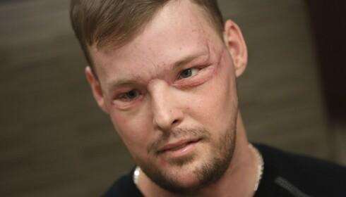 NYTT ANSIKT: Andy Sandness, et halvt år etter operasjonen. FOTO: AP Photo/Charlie Neibergall