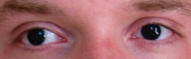 SVARTE ØYNE: En aniridi-pasient vil ofte ha svarte øyne, siden regnbuehinna (irisen) - som inneholder muskulaturen som får pupillene til å trekke seg sammen - mangler helt eller delvis. Dermed blir de svært store. Foto: Gardar Rurak / Wikimedia Commons