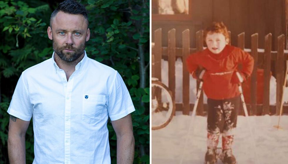 AKTIV: Tom Evensen var svært aktiv som barn. På bildet til høyre er han fem år gammel og har akkurat fått sitt første skimerke. Foto: TV 2 / Privat