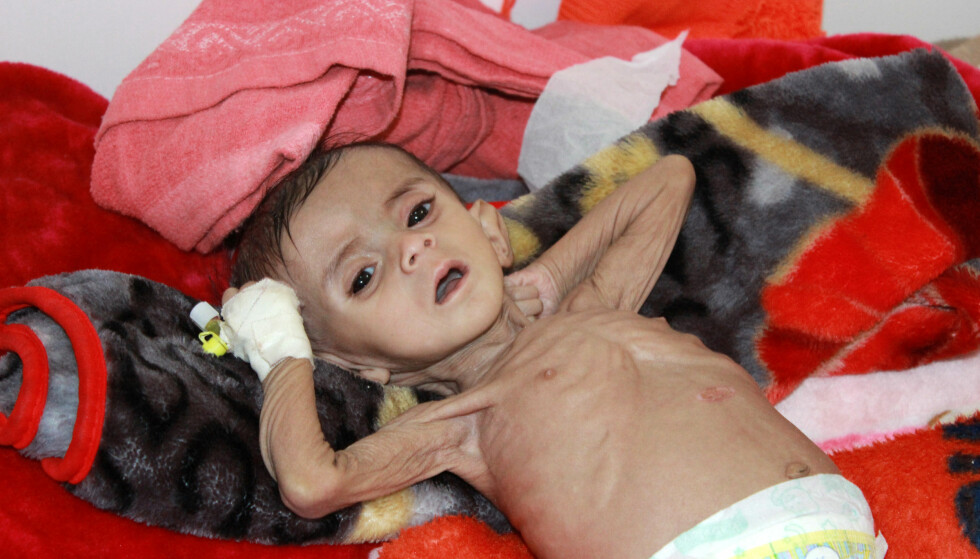 JEMENS ANSIKT: Et sterkt underernært barn får behandling på et sjukehus i byen Saada men det er stor mangel på medisiner. Foto: Reuters/NTB Scanpix