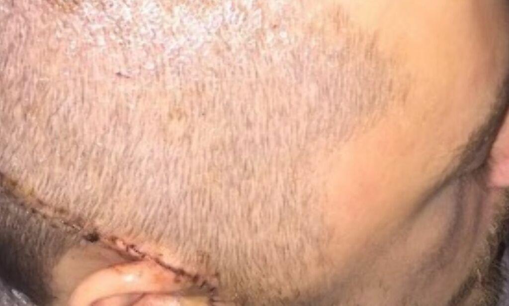 image: Skrekksmellen rystet tilskuerne. Nå tvinges han til å legge opp