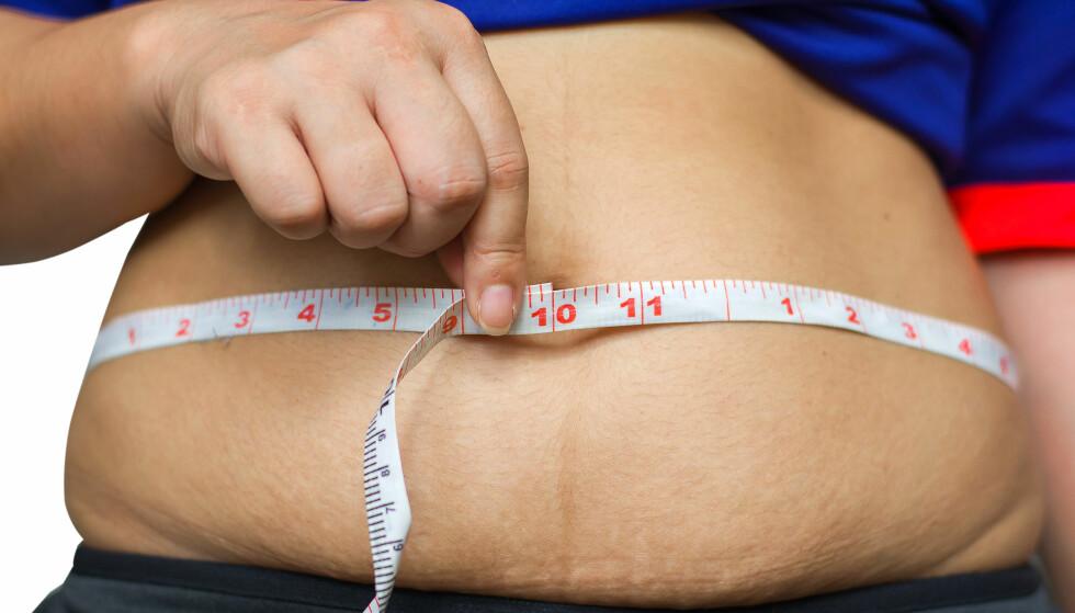 KAN REDUSERE DIABETES TYPE 2-PLAGER: Fedmekirurgi reduserer blodsukkeret hos personer med diabetes type 2 og KMI under 35, ifølge ny studie. (CC7 / Shutterstock / NTB scanpix)