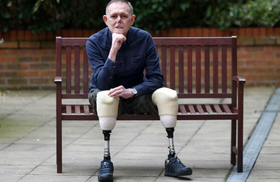 AMPUTERTE: Jaco Nel fikk kraftig blodforgiftning etter å ha fått et lite sår under lek med hunden sin. Foto: Manchester Evening News