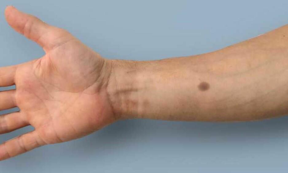 <strong>SENSOR:</strong> Den brune flekken på huden indikerer at du bør gå til legen for en sjekk. Foto: ETH Zürich