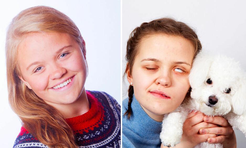 SJOKKBESKJED: Andrea Bruun Eivik var en aktiv jente som elsket både håndball og bilsport. Noen uker før konfirmasjonen kom sjokkbeskjeden fra legene - hun hadde kreft i hodet. Synet hennes er ødelagt og deler av kroppen er lammet. Her med hunden Mille. Foto: Svend Aage Madsen og privat