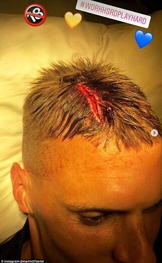 STORT KUTT: Her viser Skrtel fram kuttet i hodebunnen. Foto: Martin Skrtel/Instagram