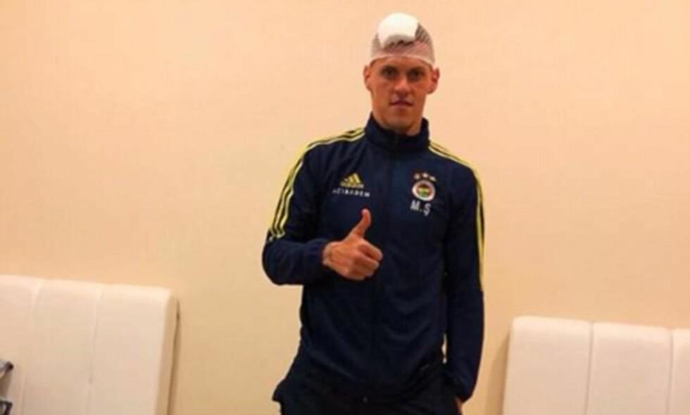 TOMMEL OPP: Martin Skrtel forsikrer fansen om at alt er i orden etter det stygge kuttet i hodet. Foto: Martin Skrtel/Instagram