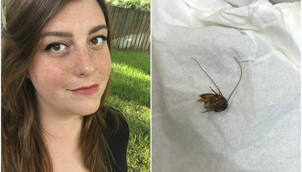SMERTER: Katie var plaget av store smerter i øret, og dro til legevakta for å få det sjekket. Der fant legene en hel kakerlakk. Foto: NTB Scanpix