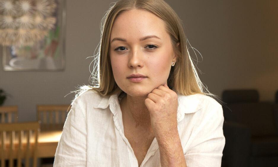 AKSEPTERT ULYKKEN: I hverdagen tenker ikke Sara lenger på at utseendet hennes har forandret seg. Foto: Dan Lindberg / Allas / All Over