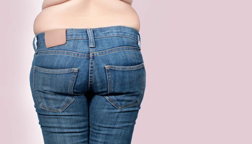 SKADELIG: Forekomsten i fedme vil fortsette å øke, viser en framskrivning fra den Europeiske fedmekongressen. Foto: NTB Scanpix.
