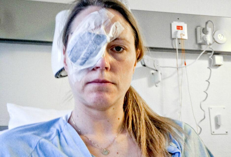 MÅTTE STRÅLEBEHANDLES: Her har Cecilie Hermanstad fått operert inn et stråleapparat på øyet, som skal ta knekken på kreftsvulsten. Foto: Privat