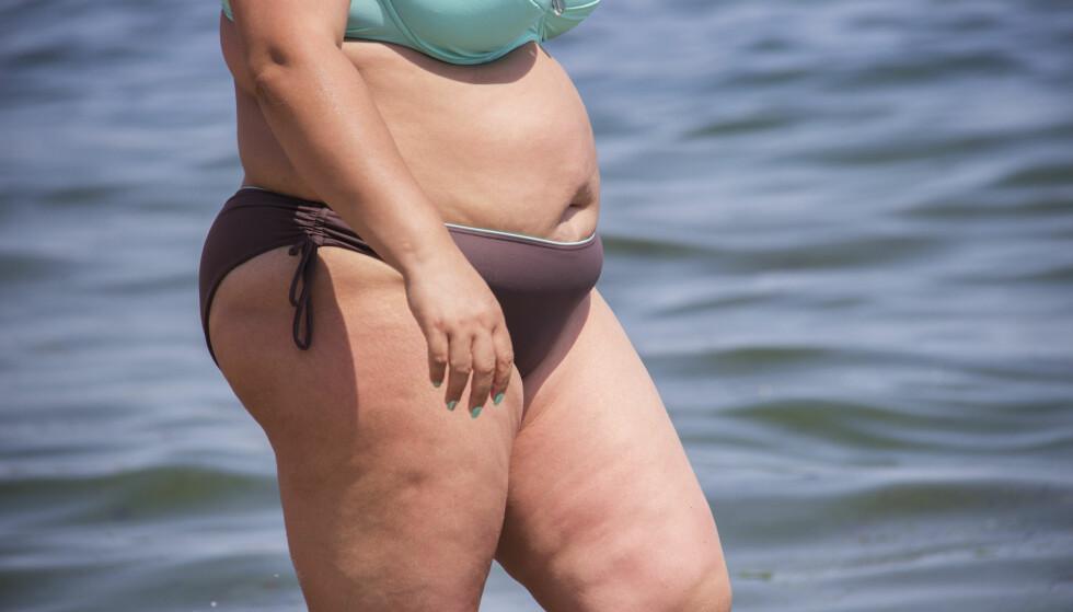 PASS PÅ: Norge er blant landene med høyest forekomst og dødelighet av føflekk-kreft. De overvektige hadde en tykkere og dermed farligere svulst enn normalvektige. Foto: NTB Scanpix