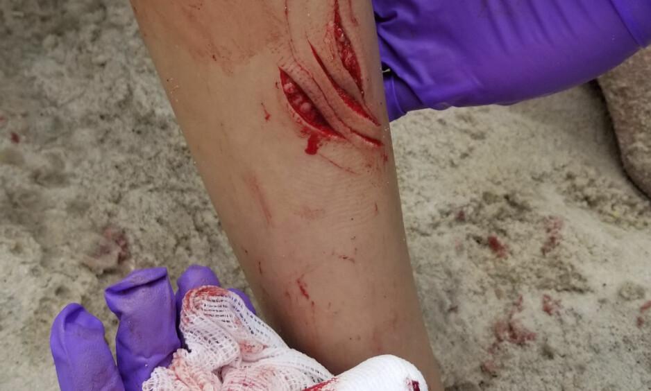 BITT AV HAI: En 12 år gammel jente ble bitt av en hai onsdag på stranda Sailors Haven i New York. Noen kilometer unna ble også en 13 år gammel gutt behandlet for haibitt. Foto: Philip Pollina / AP / NTB Scanpix