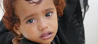 Frykter katastrofalt kolerautbrudd i Jemen