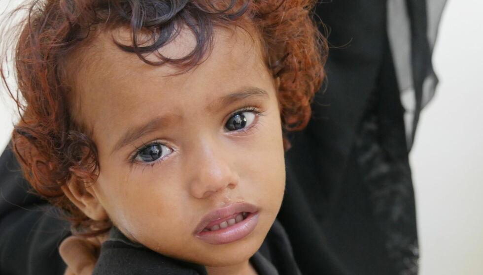 SMITTET: «Aseel» (2) ble smittet av kolera for få dager siden. Nå frykter Redd Barna at vi kan stå overfor et kolerautbrudd på størrelse med i fjor. Foto: Ali Ashwal / Redd Barna