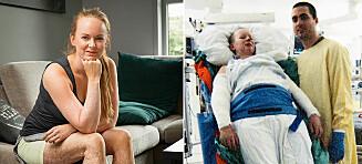 Syv år tok det Camilla å bli venn med sin brannskadde kropp