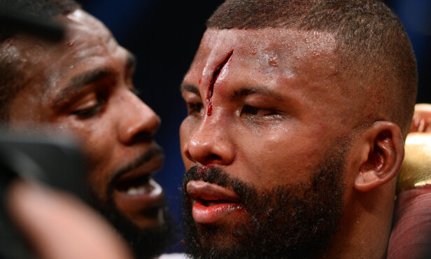 STYGT KUTT: Badou Jack etter boksekampen mot Marcus Browne. Foto: Joe Camporeale / USA Today / NTB Scanpix