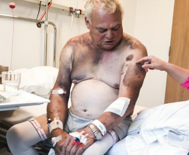 SVART: Skadene ble omfattende. Arne Urstad har vært inn og ut av sykehus og legekontor helt siden ranet i fjor høst. Foto: Privat