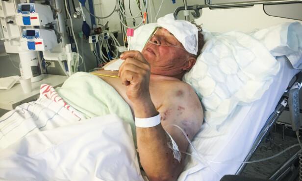 LIVSTRUENDE: Ranerne etterlot seg Arne Urstad med dødelige skader. Foto: Privat