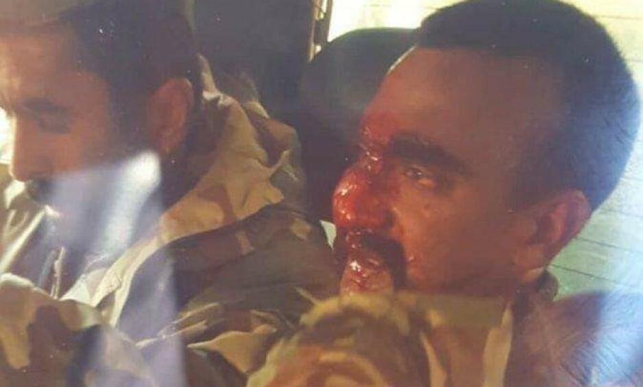 SKADET: Bildet viser den indiske piloten som føres i fangeskap av pakistanske myndigheter. Foto: Privat.