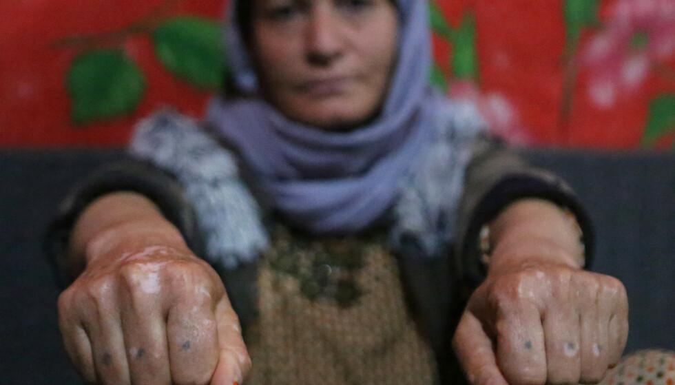 VAR SLAVE: Yazidi-kvinnen Baseh Hammo forteller nyhetsbyrået AP at hun ble mishandlet av IS-mennene som holdt henne fanget. En av dem skal ha lagt hendene hennes på asfalten for deretter å hoppe på dem, sier hun. Foto: Khalid Mohammed / AP / Scanpix