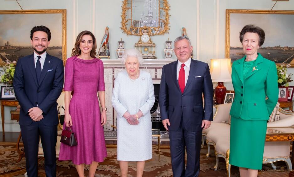 VEKKER OPPSIKT: Det er nesten ikke til å unngå å se blåmerket til dronning Elizabeth. Foto: NTB Scanpix