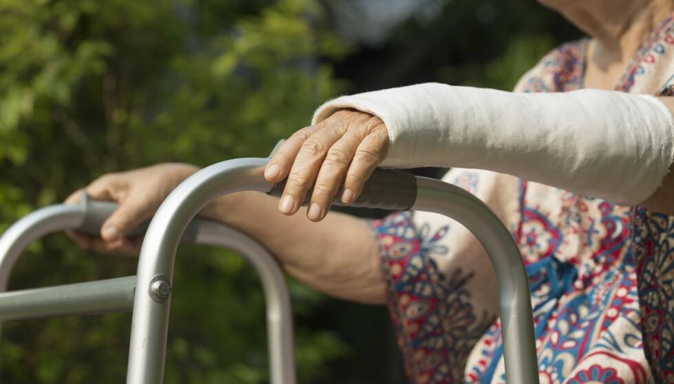 BRUKKET ARM: Hver annen kvinne og hver fjerde mann over 50 år vil oppleve minst et brudd som følge av benskjørhet, ifølge eksperter. Foto: Shutterstock / NTB Scanpix
