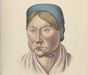 LEPRA: Kvinne på 26 med lepra i ansiktet. Illustrasjon hentet fra boka.