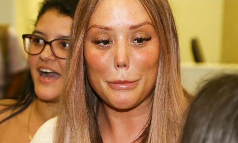 SJOKKERTE: Nye bilder av den britiske realitystjerna Charlotte Crosby sjokkerer fansen. Foto: NTB Scanpix