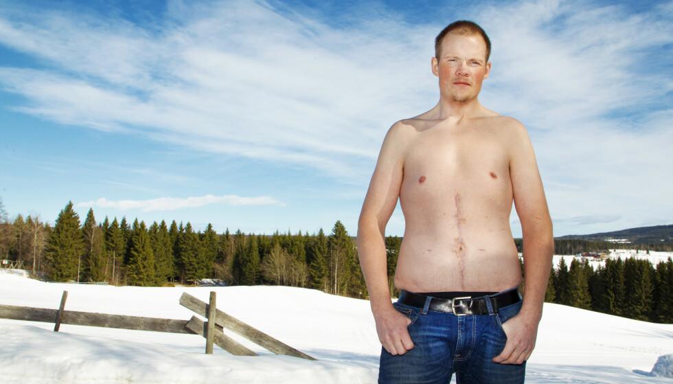 ANGRER: Ole Anders Olsbakk fra Brumunddal er slankeoperert, og nesten 80 lettere enn han var på sitt tyngste. I dag lever han i et smertehelvete. Etter operasjonen har han vært lagt inn på sykehus over 70 ganger. Han er også operert mer enn 20 ganger på grunn av komplikasjoner og bivirkninger.
