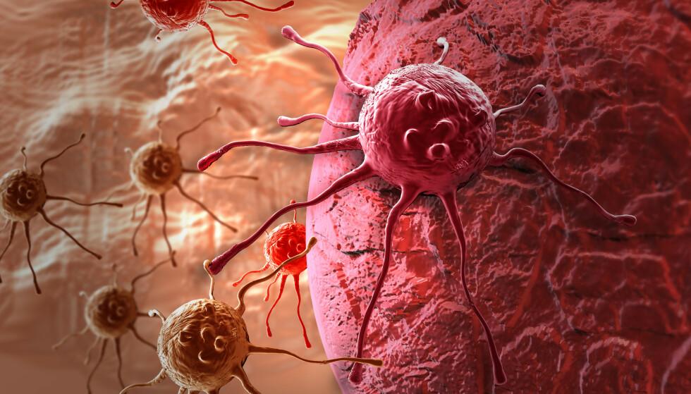 KOSTHOLD OG KREFT: Dette må du vite om kostholdet for å minske risikoen både for kreft og andre sykdommer. Foto: Shutterstock / NTB scanpix