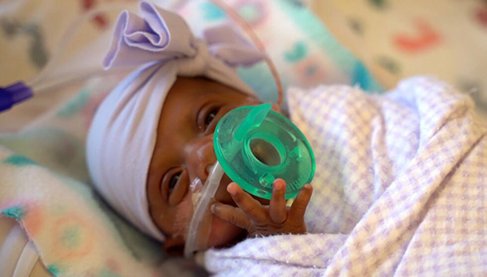 <strong>OVERLEVDE:</strong> Lille Saybie har overlevd tross hennes lave fødselsvekt. Bildet er tatt i mars. Foto: Sharp HealthCare via AP.