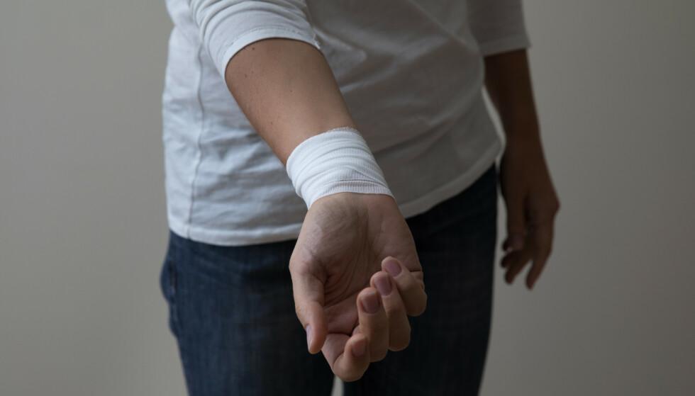 Bilder av selvskading på sosiale medier kan bidra til intern konkurranse og et nettsamfunn der unge påvirker andre negativt. Bildene bør heller tas med inn i terapirommet, skriver innsenderen. Foto: Shutterstock / NTB Scanpix