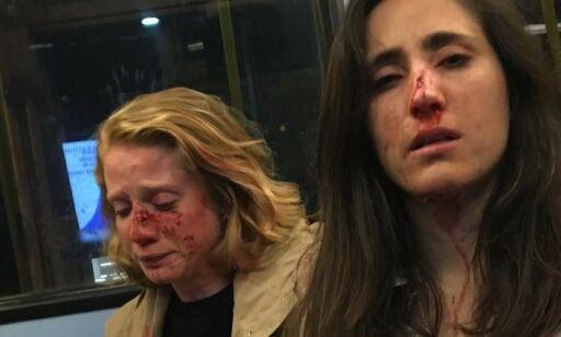 image: Homofilt par banket opp på London-buss