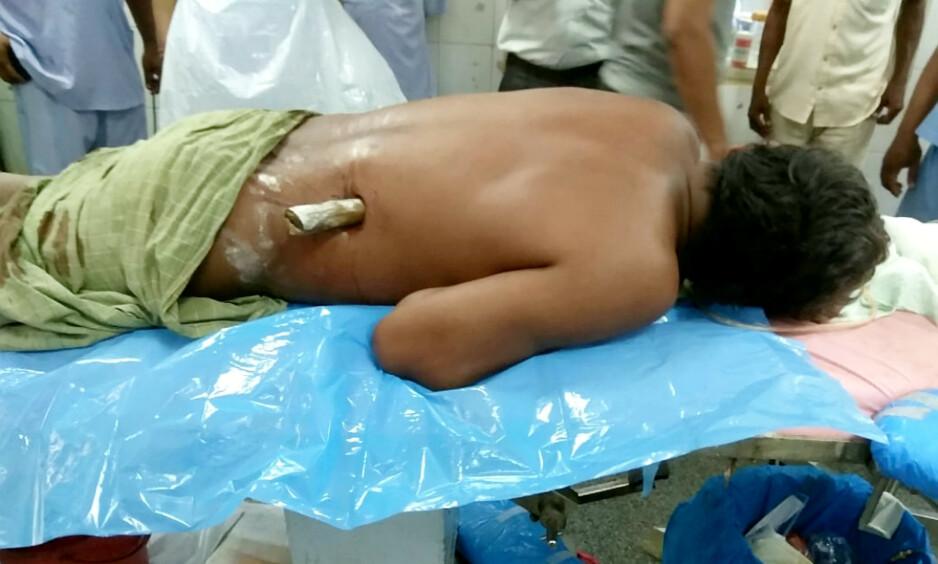 DRAMATISK: Slik så Panchanana Pradhan (38) ut da han ankom sykehuset i Cuttack. Nesten hele den 75 centimeter lange bambusstokken befant seg inni overkroppen. Foto: Goal Post Media / SWNS / NTB Scanpix