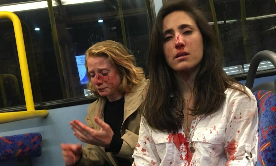 ANGREPET: Melania Geymonat (t.h.) og kjæresten Chris ble angrepet på en buss i London. Foto: Privat