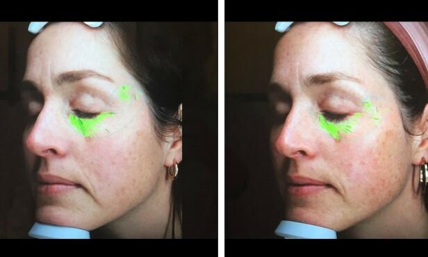 EFFEKT: Før- og etterbilde viser en betraktelig reduksjon i rynkedybden etter 8 ukers bruk. Særlig kan man se at rynkene ved munnpartiet er mindre markerte.