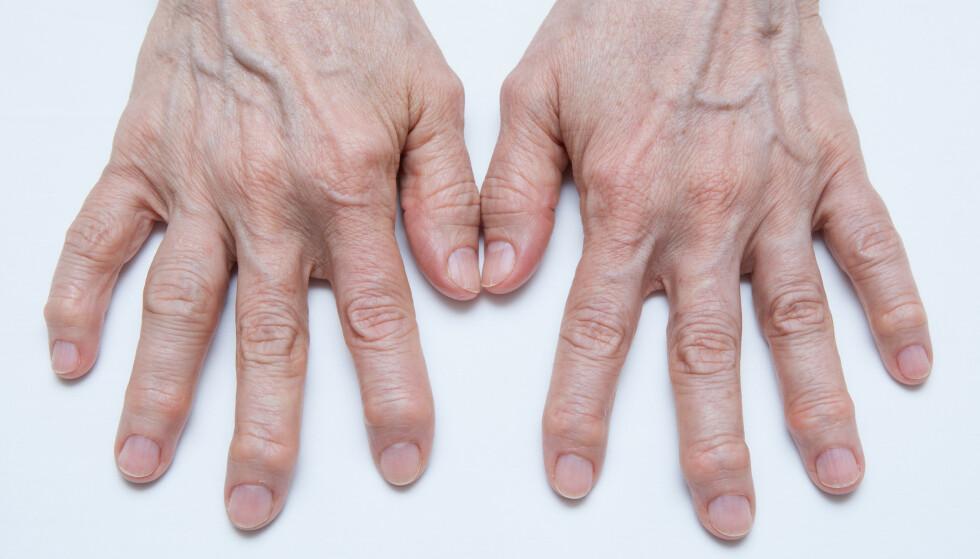 BLIR TYDELIG: Artrose i hendene rammer ofte fingrenes ytterledd og midtledd, og tommelens rotledd. Man kan ofte se tydelige beinpåleiringer i form av kuler på ytterleddene, en fortykkelse rundt midtleddene og at tommelens rotledd trer litt tydeligere fram. Foto: NTB Scanpix