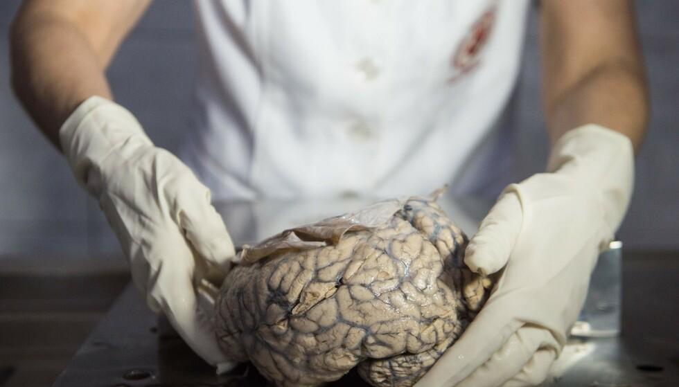 MENNESKEHJERNE: Forskerne har delvis vekket grisehjerner til live og metoden kan, ifølge norsk nevrokirurg, i prinsippet også brukes på menneskehjerner. Her vises en hjerne fram på Nevropatologisk Museum i Lima i 2012. Foto: AFP/Ernesto Benavides.
