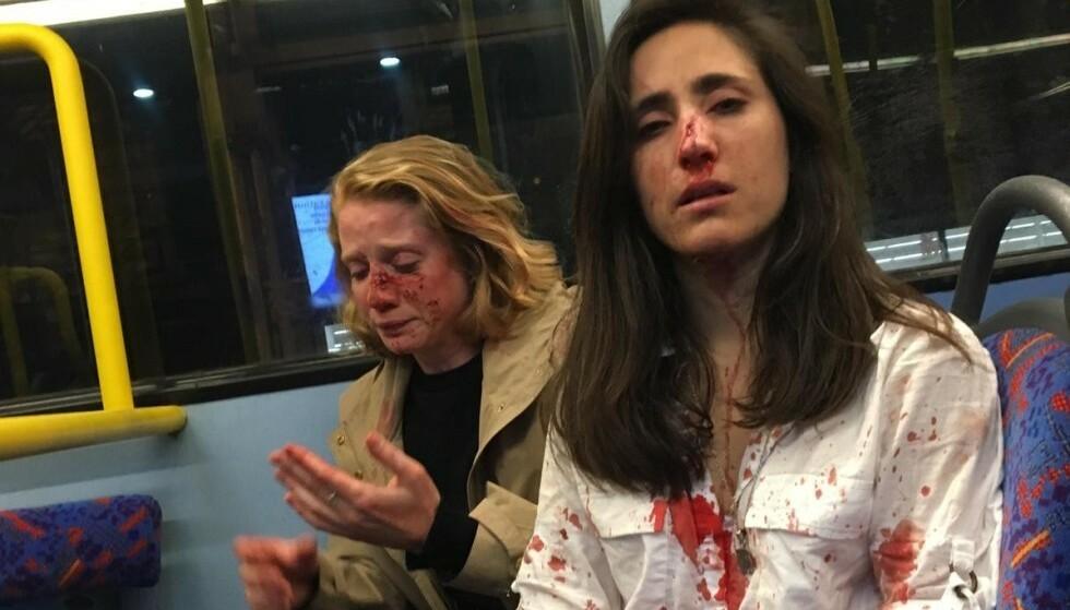 BANKET OPP: Melania Geymonat (28) (t.h.) og kjæresten Chris ble banket opp på en nattbuss i London i mai. Fire personer er nå tiltalt for hatkriminalitet. Foto: Privat