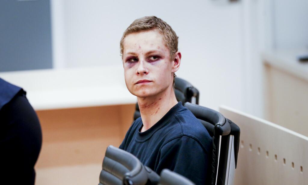 SLIK SER HAN UT: Den siktede Philip Manshaus er fysisk preget av å ha blitt overmannet under terroraksjonen. Foto: Henning Lillegård / Dagbladet