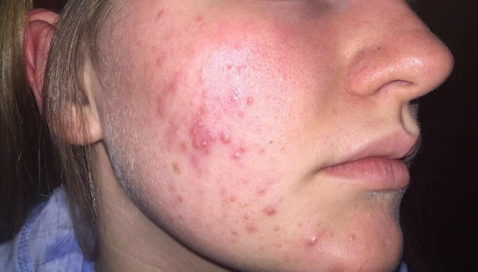 BETENT OG IRRITERT: Dette var Kaja Stapnes (18) sin hud da hun først tok kontakt med Karma.no FOTO: Privat