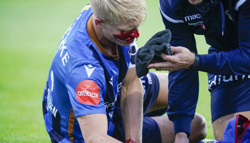 BLODET RANT: Stabæks Andreas Hanche-Olsen begynte å blø etter en duell med egen keeper og Sam Adekugbe mot slutten av oppgjøret mot Vålerenga. Foto: Heiko Junge / NTB scanpix