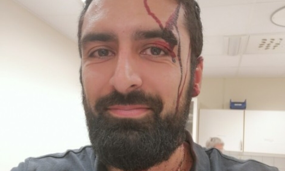 PÅ JOBB IGJEN: Mahdi Shamsolebad fikk pistoskaftet i hodet og måtte sy tre sting. Men under et døgn etter ransforsøket, er han allerede på jobb igjen. Foto: Privat